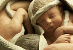 02 -SMA-Bologna-MUSEO-DI-PALAZZO-POGGI-gravidanza-gemellare-di-nove-mesi-di-G.B.Sandri-coll-Galli